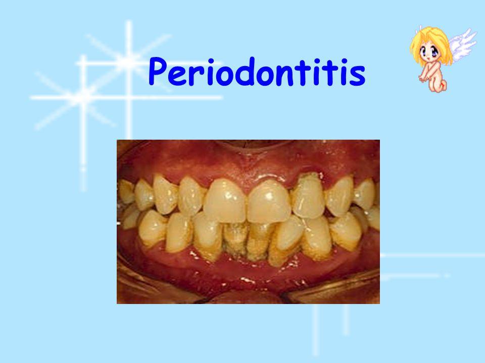 แบ่งตามความสัมพันธ์ระหว่าง แกนตามยาวของฟันคุดกับแกน ตามยาวของ second molar