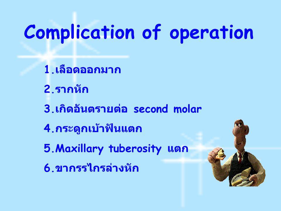 Complication of operation 1. เลือดออกมาก 2. รากหัก 3. เกิดอันตรายต่อ second molar 4. กระดูกเบ้าฟันแตก 5.Maxillary tuberosity แตก 6. ขากรรไกรล่างหัก
