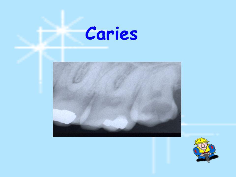 แบ่งตามช่องว่างระหว่างด้าน distal ของ second molar กับ ramus