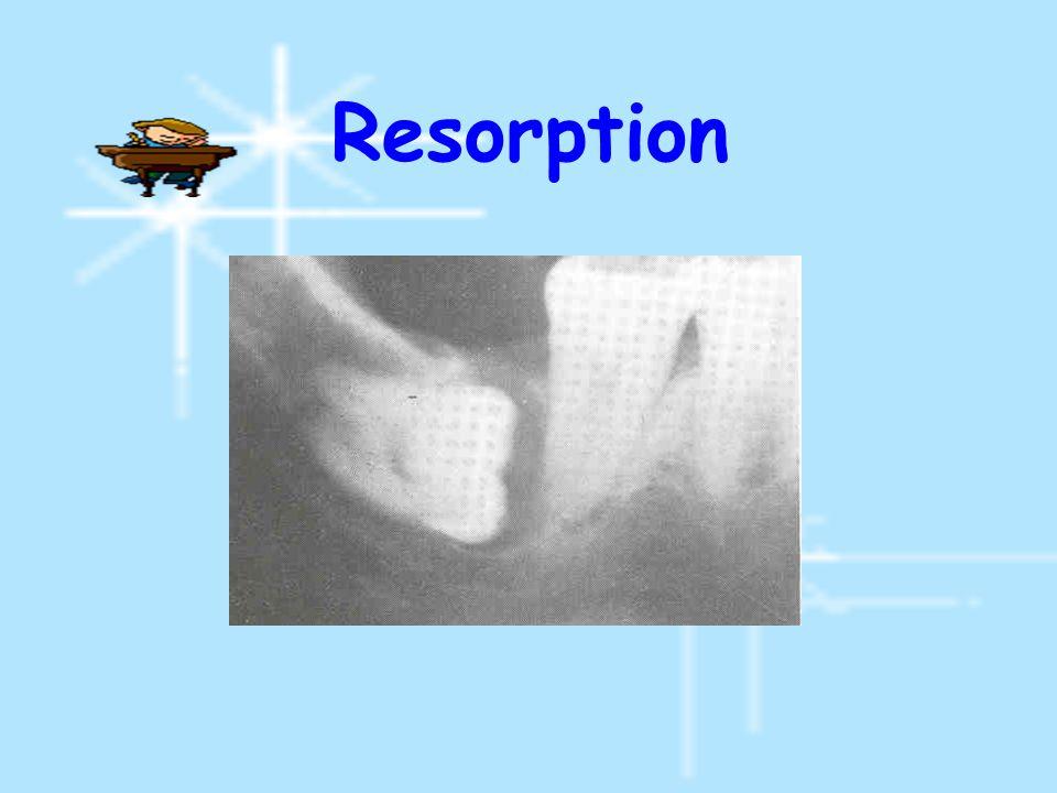 Resorption