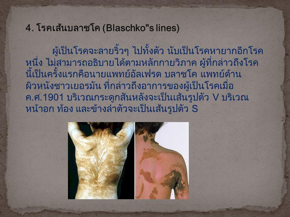 4. โรคเส้นบลาชโค (Blaschko