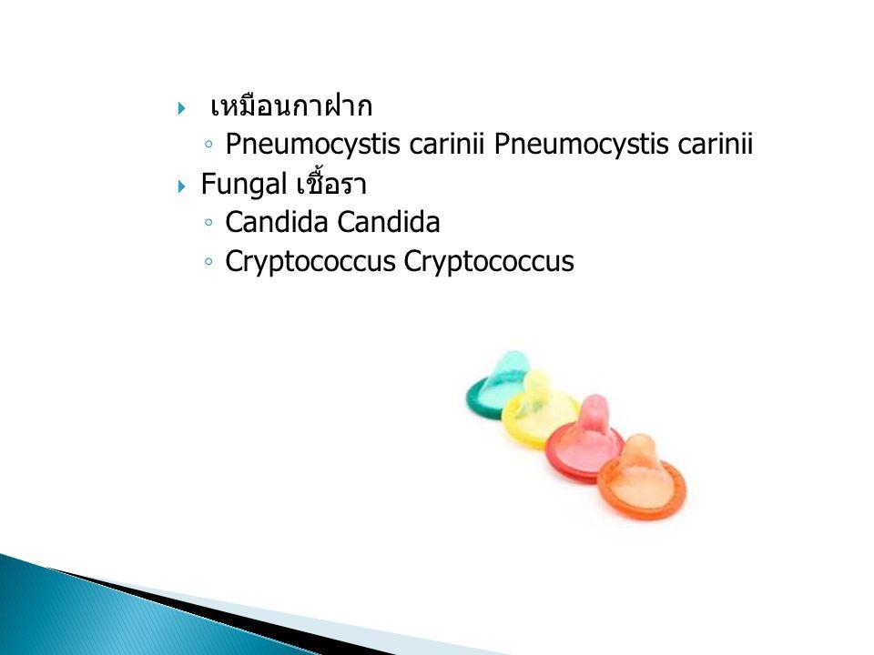 Bacterial แบคทีเรีย ◦ Tuberculosis วัณโรค (TB) ◦ Strep pneumonia โรคปอดบวม Strep Viral ◦ Kaposi Sarcoma Kaposi sarcoma ◦ Herpes เริม ◦ Influenza (flu)