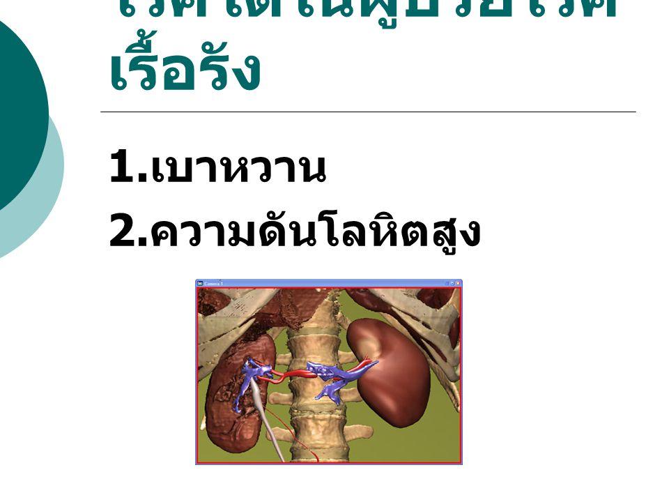 โรคไตในผู้ป่วยโรค เรื้อรัง 1. เบาหวาน 2. ความดันโลหิตสูง