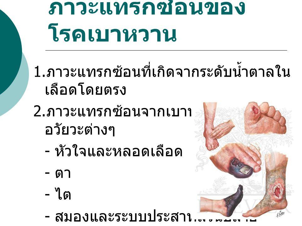 ภาวะแทรกซ้อนของ โรคเบาหวาน 1. ภาวะแทรกซ้อนที่เกิดจากระดับน้ำตาลใน เลือดโดยตรง 2. ภาวะแทรกซ้อนจากเบาหวานทำลาย อวัยวะต่างๆ - หัวใจและหลอดเลือด - ตา - ไต