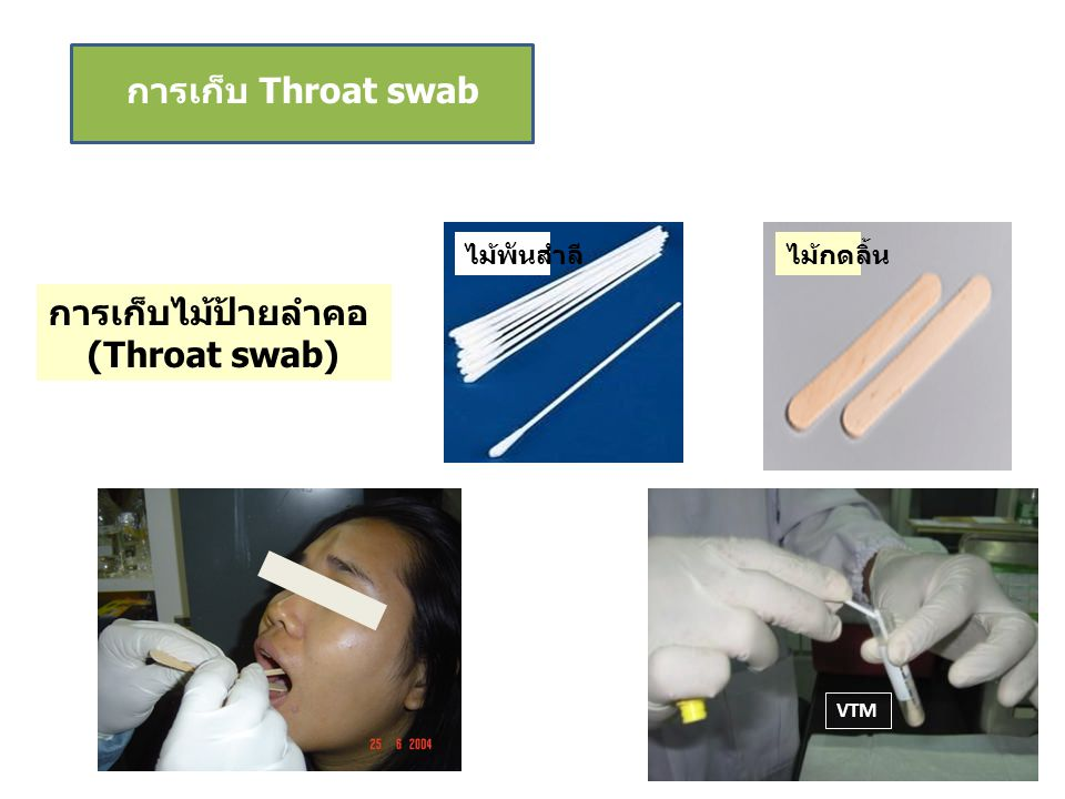 การเก็บ Throat swab การเก็บไม้ป้ายลำคอ (Throat swab) ไม้พันสำลีไม้กดลิ้น VTM