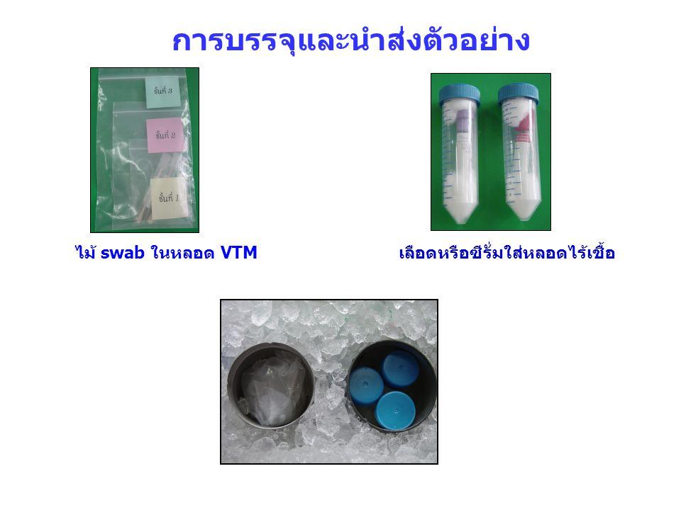 การบรรจุและนำส่งตัวอย่าง ไม้ swab ในหลอด VTMเลือดหรือซีรั่มใส่หลอดไร้เชื้อ