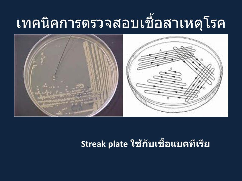 เทคนิคการตรวจสอบเชื้อสาเหตุโรค Streak plate ใช้กับเชื้อแบคทีเรีย