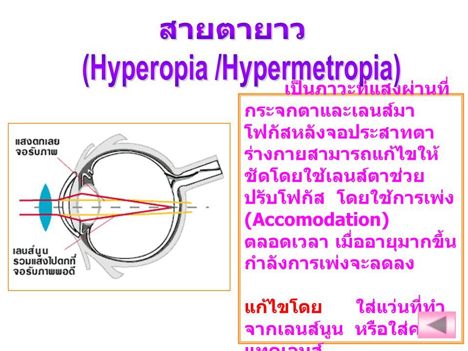เป็นภาวะที่แสงผ่านที่ กระจกตาและเลนส์มา โฟกัสหลังจอประสาทตา ร่างกายสามารถแก้ไขให้ ชัดโดยใช้เลนส์ตาช่วย ปรับโฟกัส โดยใช้การเพ่ง (Accomodation) ตลอดเวลา