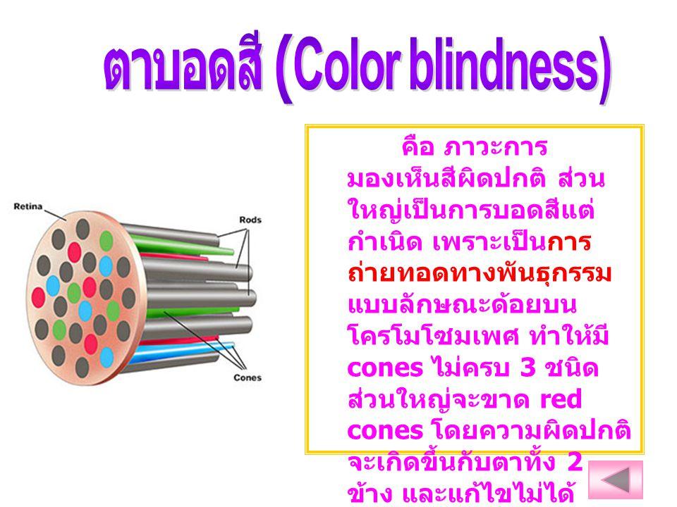 คือ ภาวะการ มองเห็นสีผิดปกติ ส่วน ใหญ่เป็นการบอดสีแต่ กำเนิด เพราะเป็นการ ถ่ายทอดทางพันธุกรรม แบบลักษณะด้อยบน โครโมโซมเพศ ทำให้มี cones ไม่ครบ 3 ชนิด