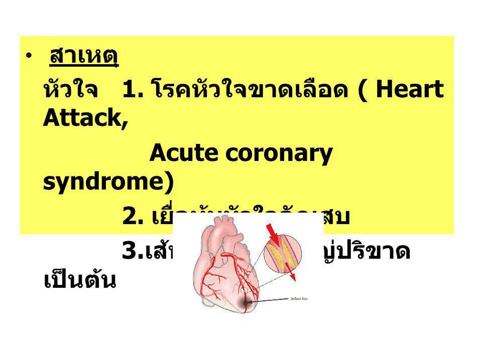 สาเหตุ หัวใจ 1. โรคหัวใจขาดเลือด ( Heart Attack, Acute coronary syndrome) 2. เยื่อหุ้มหัวใจอักเสบ 3. เส้นเลือดแดงใหญ่ปริขาด เป็นต้น