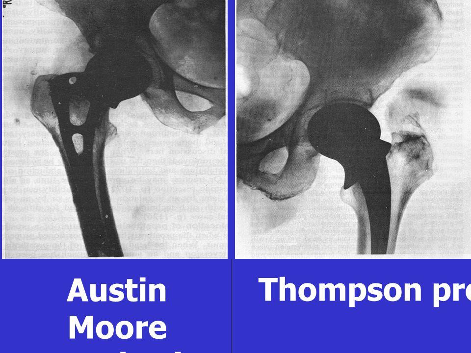 Austin Moore prosthesis Thompson prosthesis