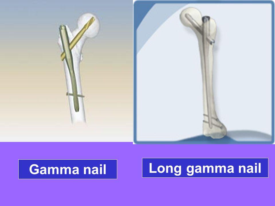 Gamma nail Long gamma nail