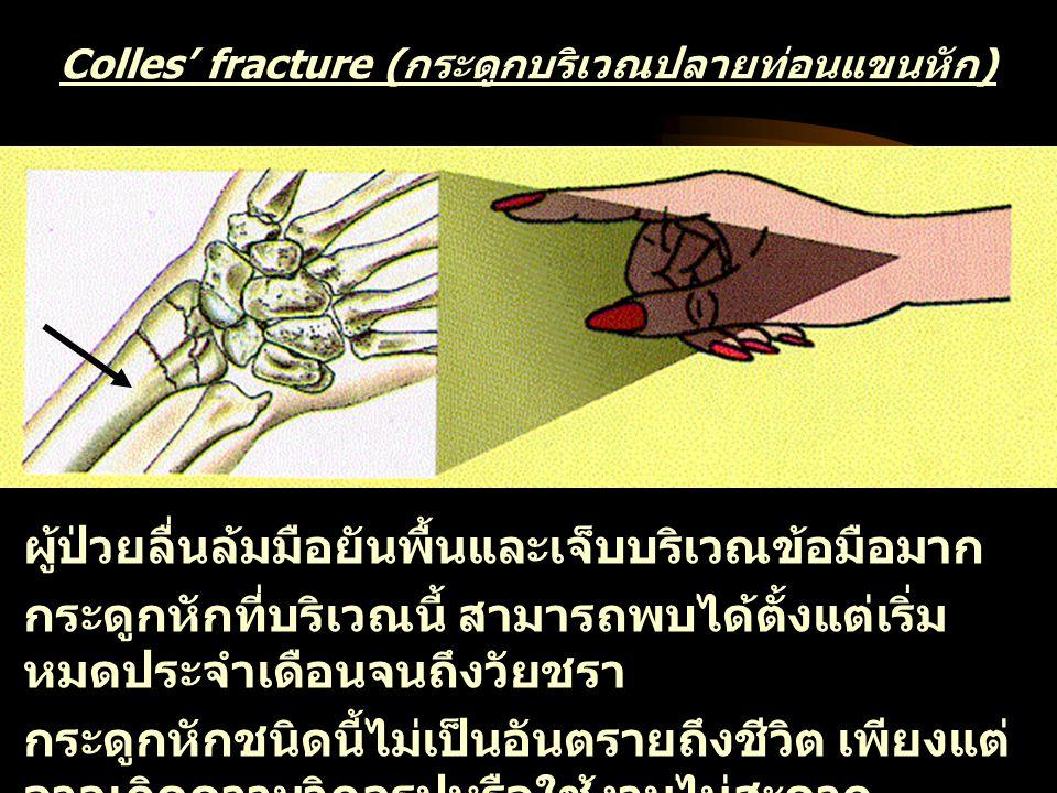 Vertebroplasty for osteoporotic vertebral fracture