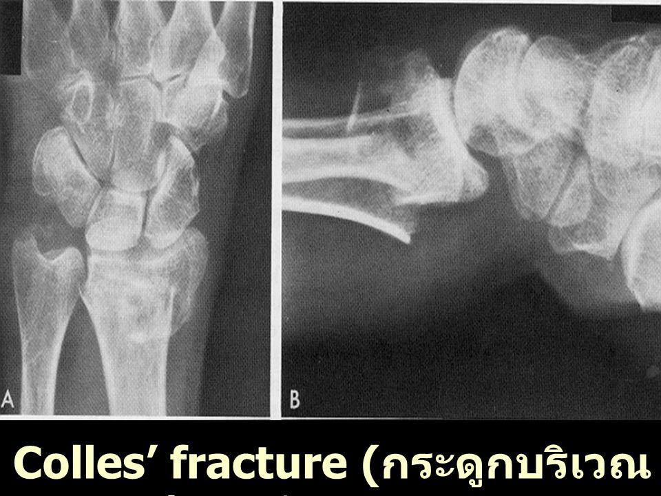 J.S. อายุ 93 ปี Vertebral fracture