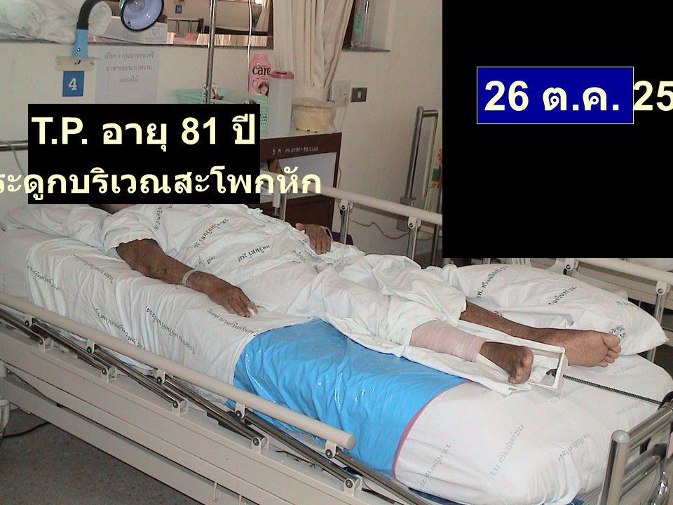 T.P. อายุ 81 ปี กระดูกบริเวณสะโพกหัก 26 ต. ค. 2547