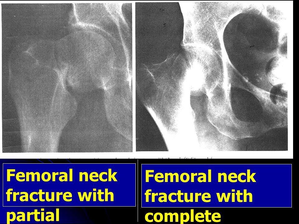 Femoral neck fracture with partial displacement Femoral neck fracture with complete displacement