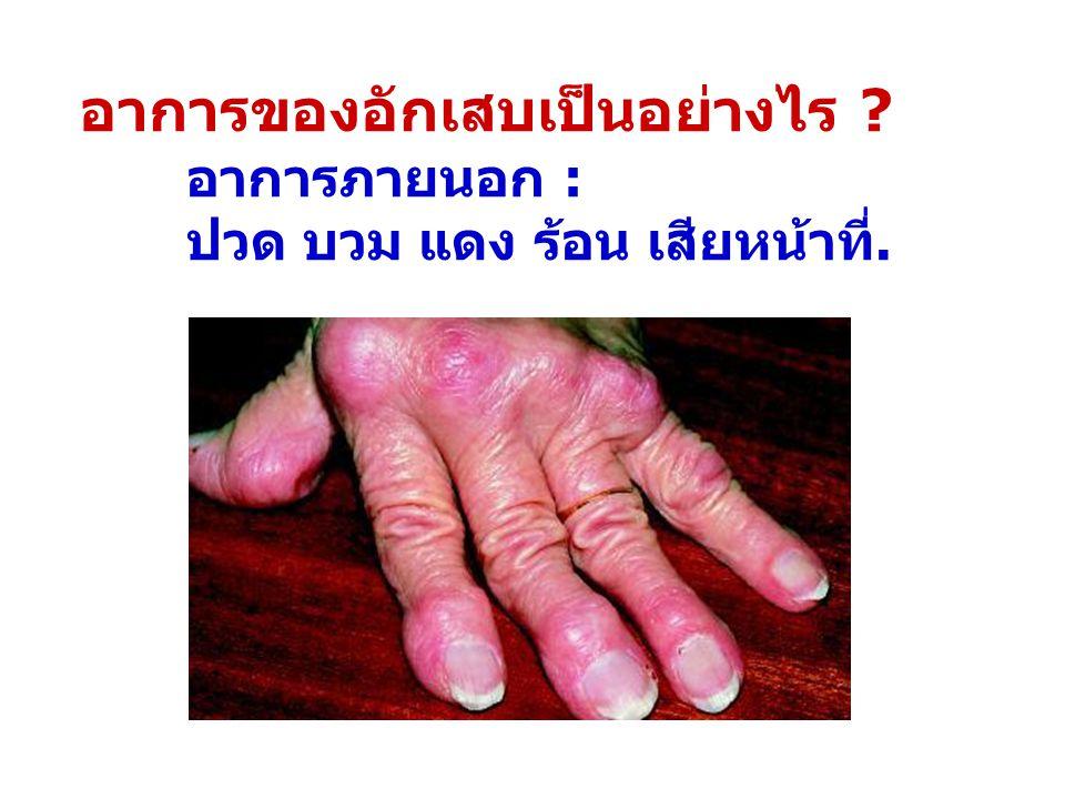 อาการของอักเสบเป็นอย่างไร ? อาการภายนอก : ปวด บวม แดง ร้อน เสียหน้าที่.