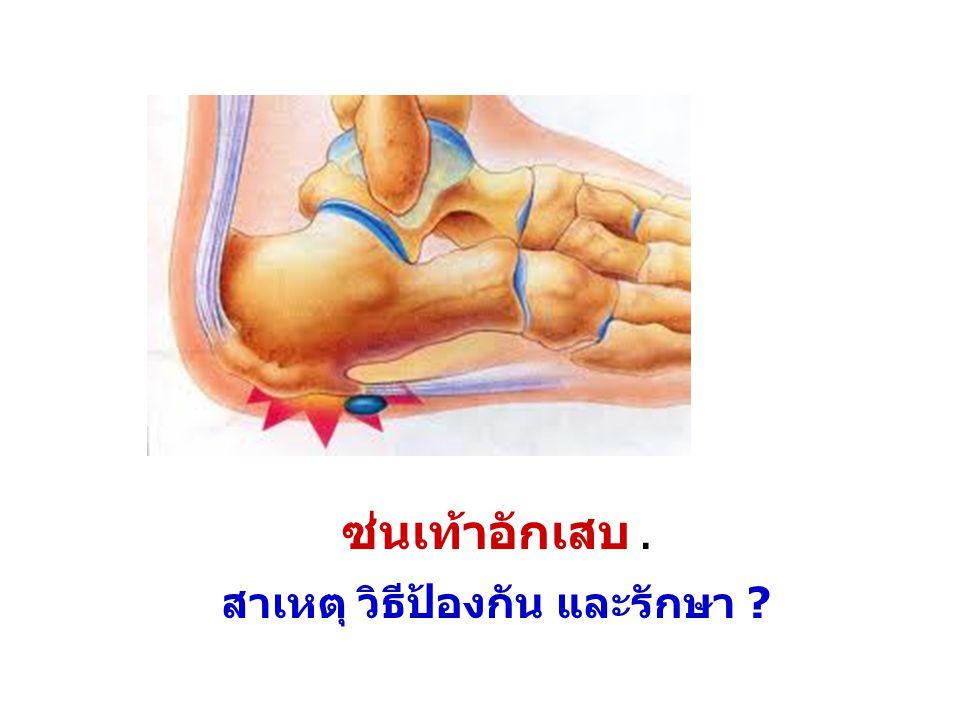 ซ่นเท้าอักเสบ. สาเหตุ วิธีป้องกัน และรักษา ?