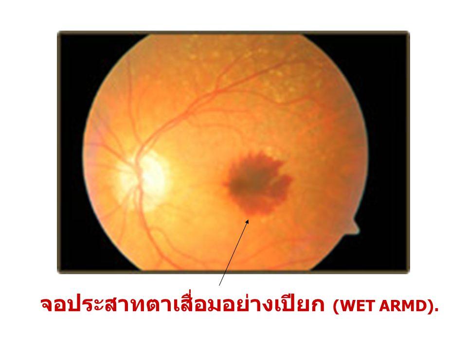 จอประสาทตาเสื่อมอย่างเปียก (WET ARMD).