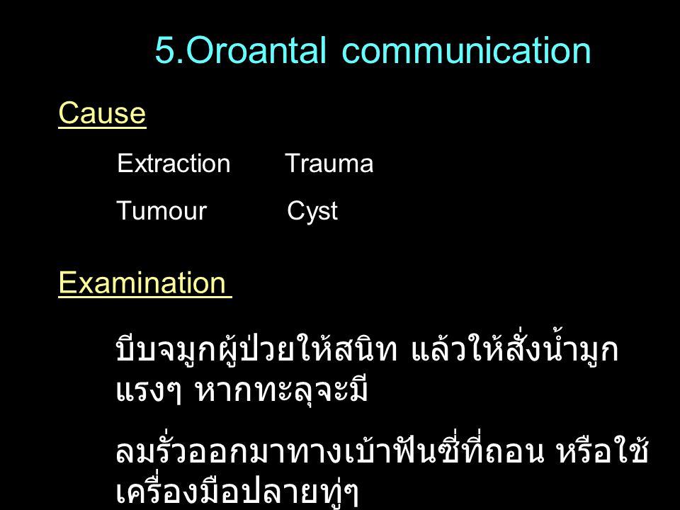 5.Oroantal communication Cause Extraction Trauma Tumour Cyst Examination บีบจมูกผู้ป่วยให้สนิท แล้วให้สั่งน้ำมูก แรงๆ หากทะลุจะมี ลมรั่วออกมาทางเบ้าฟั
