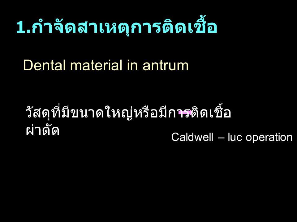 Dental material in antrum 1. กำจัดสาเหตุการติดเชื้อ วัสดุที่มีขนาดใหญ่หรือมีการติดเชื้อ ผ่าตัด Caldwell – luc operation