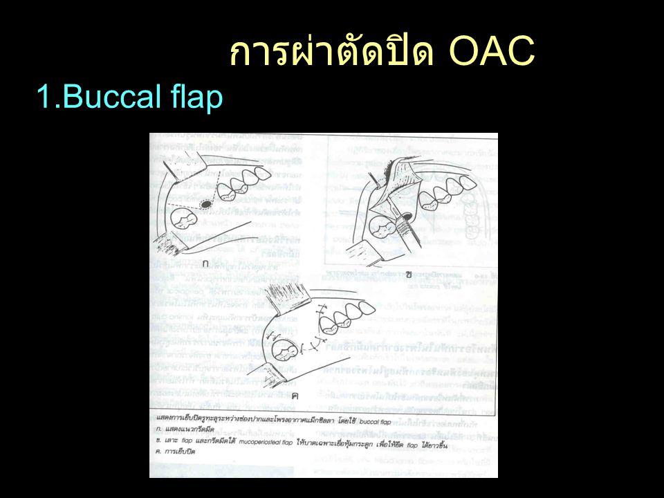 1.Buccal flap การผ่าตัดปิด OAC