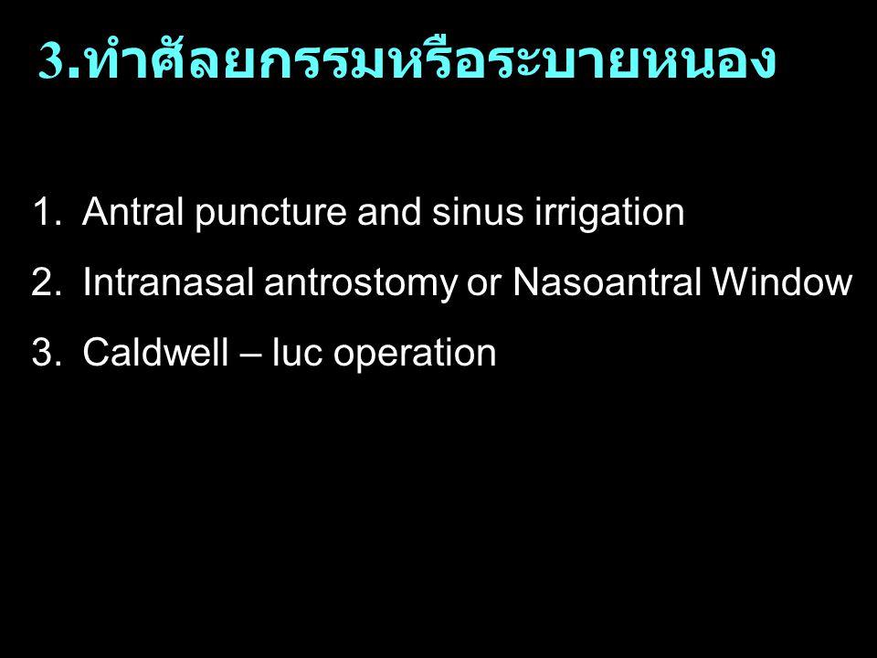 3. ทำศัลยกรรมหรือระบายหนอง 1.Antral puncture and sinus irrigation 2.Intranasal antrostomy or Nasoantral Window 3.Caldwell – luc operation