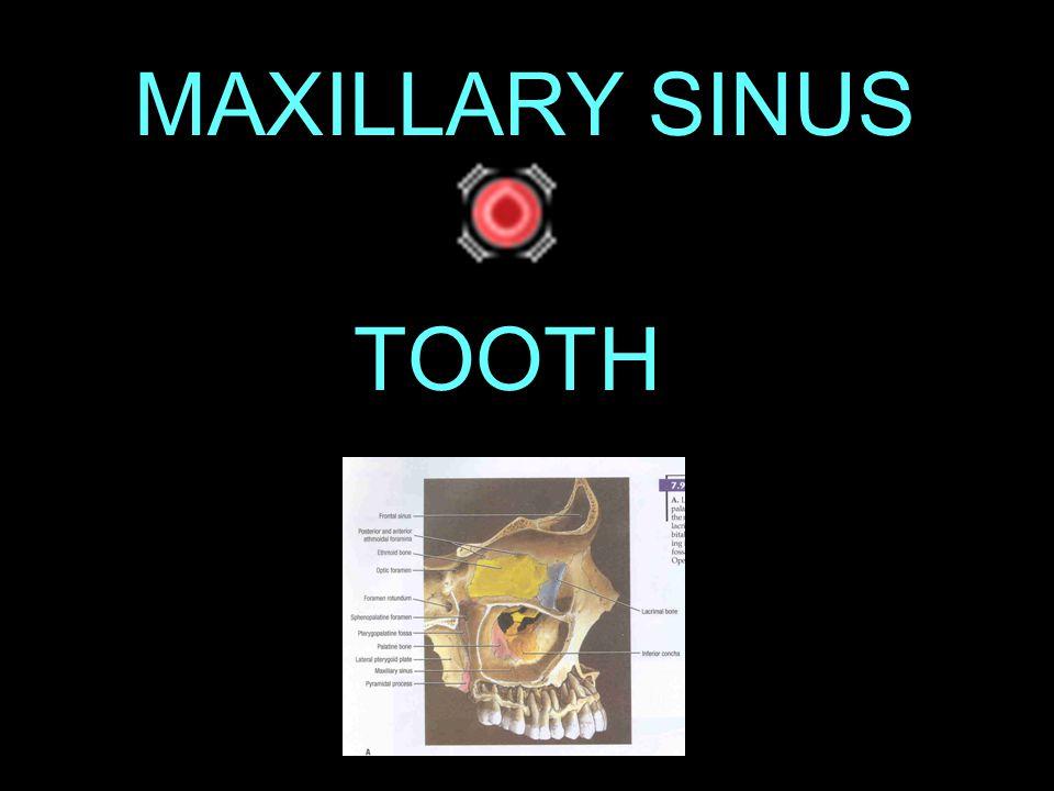 MAXILLARY SINUSITIS Infection or Inflammation of the maxillary sinus
