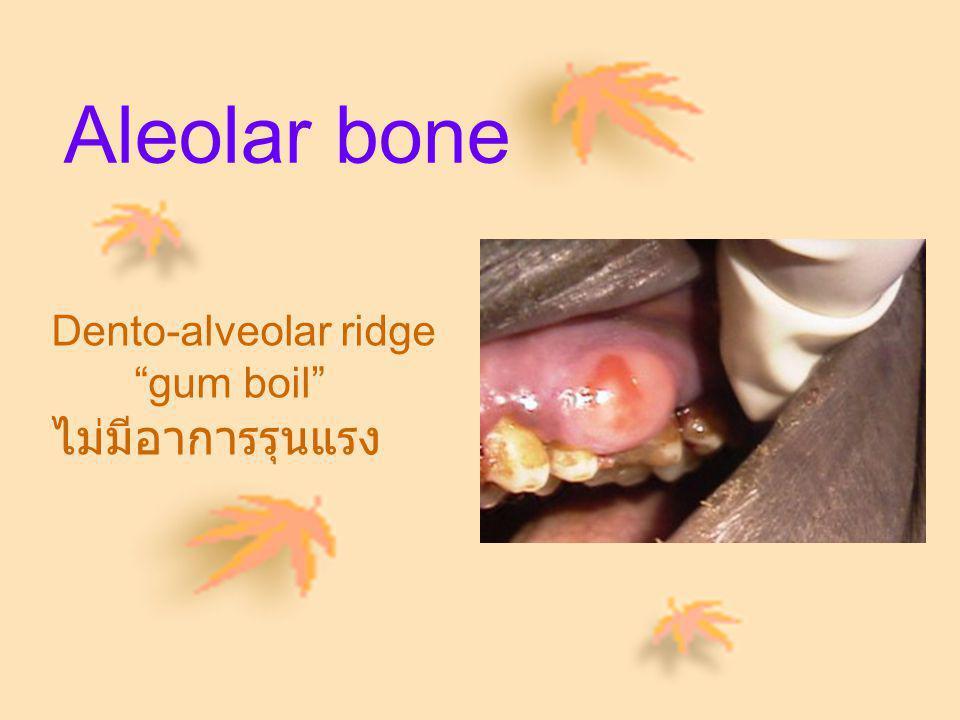 "Aleolar bone Dento-alveolar ridge ""gum boil"" ไม่มีอาการรุนแรง"