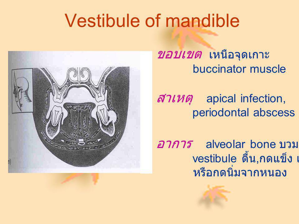 Vestibule of mandible ขอบเขต เหนือจุดเกาะ buccinator muscle สาเหตุ apical infection, periodontal abscess อาการ alveolar bone บวม, vestibule ตื้น, กดแข