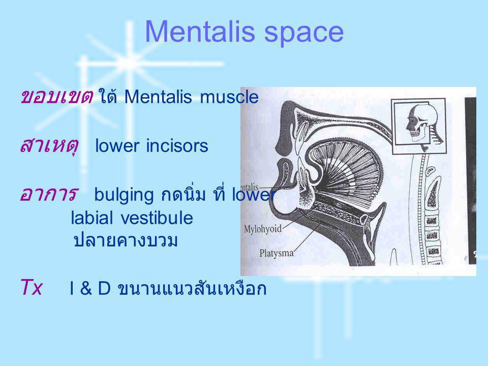 Mentalis space ขอบเขต ใต้ Mentalis muscle สาเหตุ lower incisors อาการ bulging กดนิ่ม ที่ lower labial vestibule ปลายคางบวม Tx I & D ขนานแนวสันเหงือก