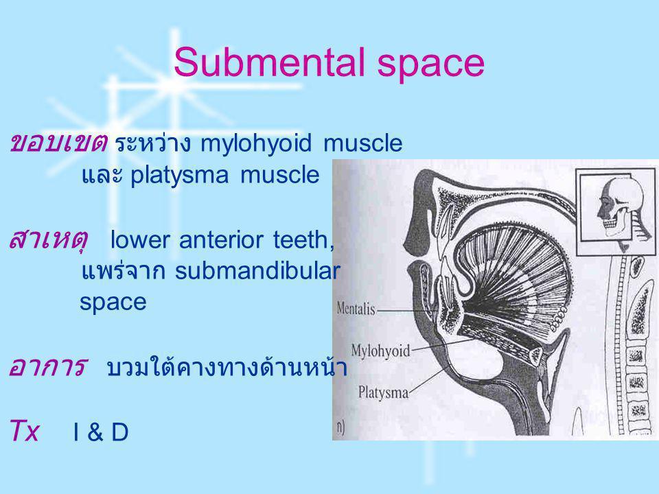 Submental space ขอบเขต ระหว่าง mylohyoid muscle และ platysma muscle สาเหตุ lower anterior teeth, แพร่จาก submandibular space อาการ บวมใต้คางทางด้านหน้
