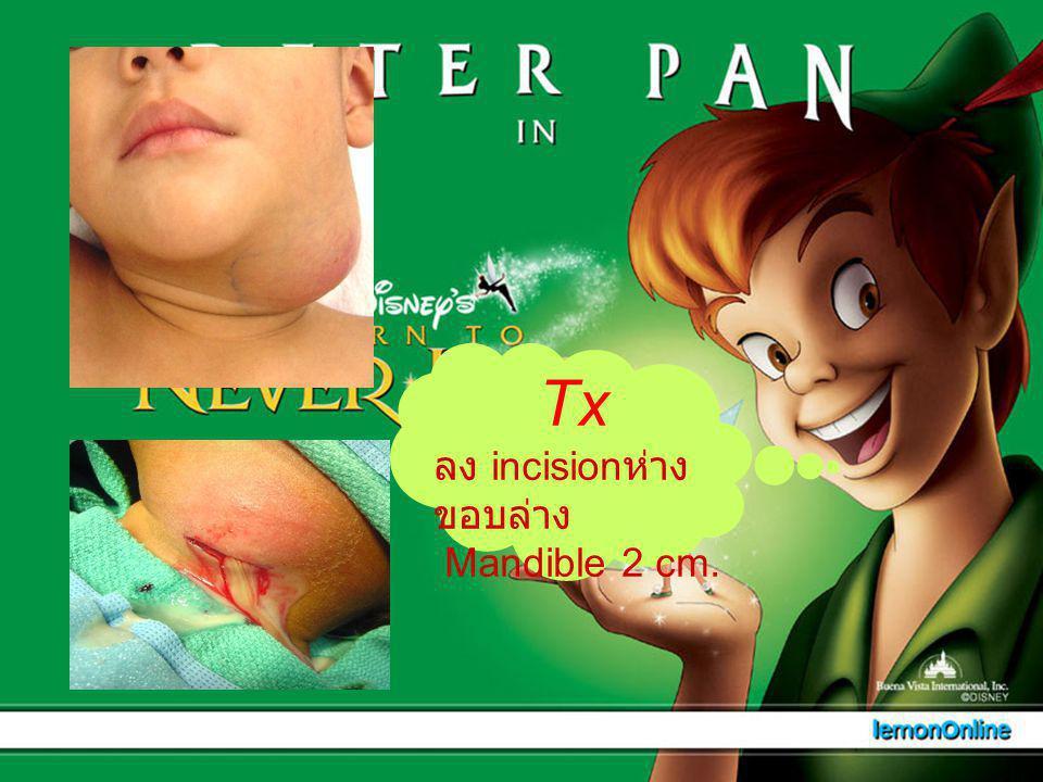 Tx ลง incision ห่าง ขอบล่าง Mandible 2 cm.
