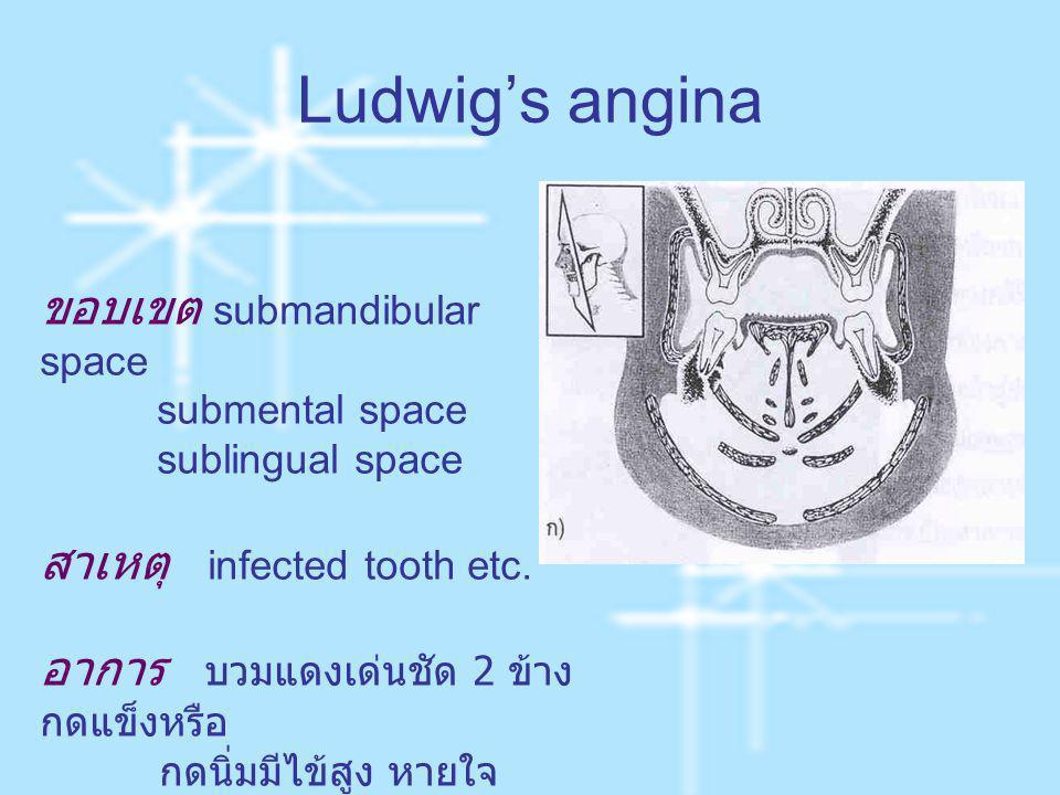 Ludwig's angina ขอบเขต submandibular space submental space sublingual space สาเหตุ infected tooth etc. อาการ บวมแดงเด่นชัด 2 ข้าง กดแข็งหรือ กดนิ่มมีไ