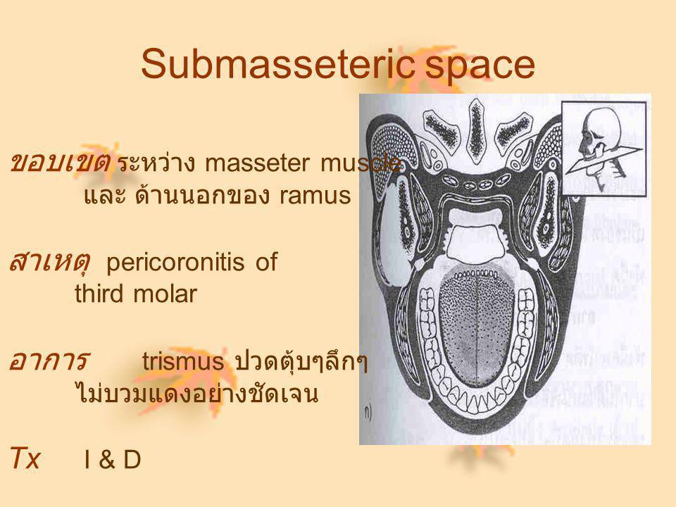Submasseteric space ขอบเขต ระหว่าง masseter muscle และ ด้านนอกของ ramus สาเหตุ pericoronitis of third molar อาการ trismus ปวดตุ้บๆลึกๆ ไม่บวมแดงอย่างช