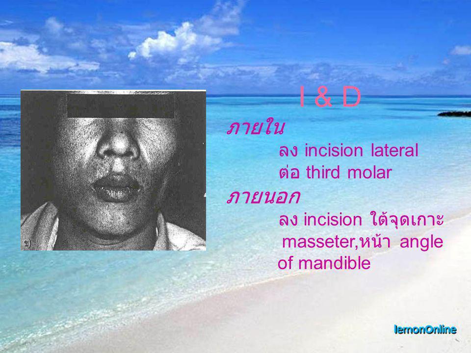 I & D ภายใน ลง incision lateral ต่อ third molar ภายนอก ลง incision ใต้จุดเกาะ masseter, หน้า angle of mandible