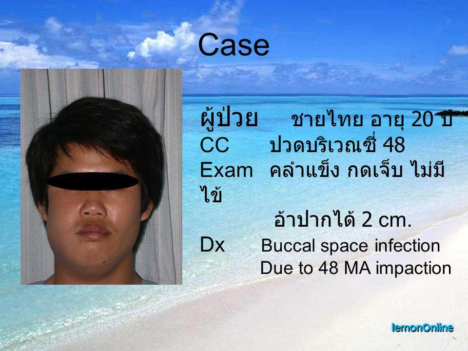 Case ผู้ป่วย ชายไทย อายุ 20 ปี CC ปวดบริเวณซี่ 48 Exam คลำแข็ง กดเจ็บ ไม่มี ไข้ อ้าปากได้ 2 cm. Dx Buccal space infection Due to 48 MA impaction