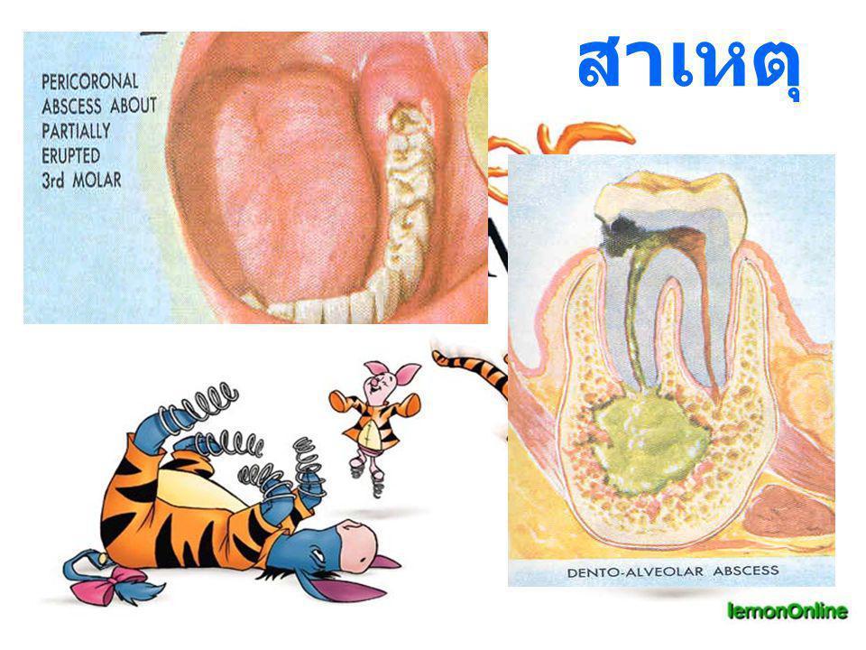 TX I & D intraoral Meds PGS 2,000,000 U Metronidazole 200 mg. Paracetamol 500 mg.