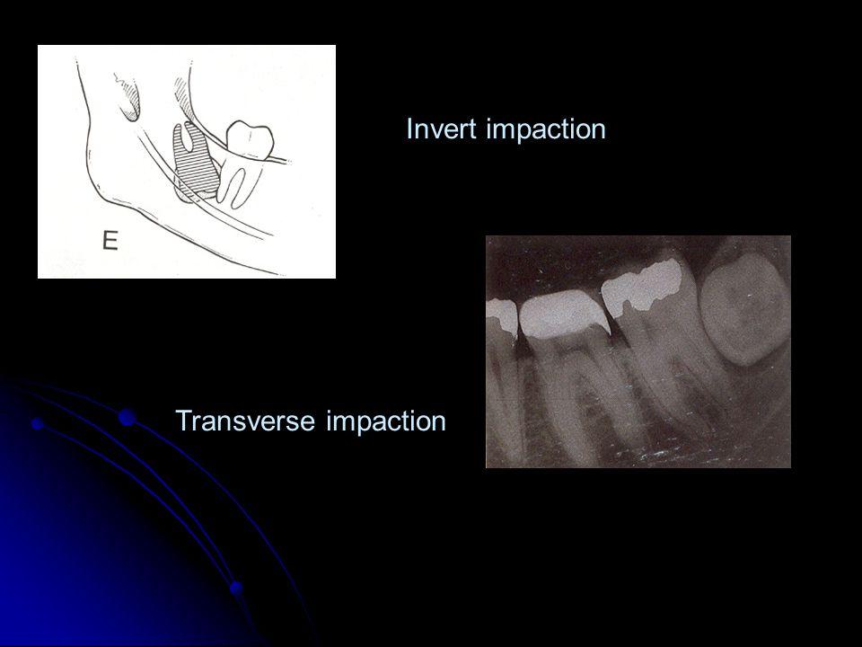 Invert impaction Transverse impaction