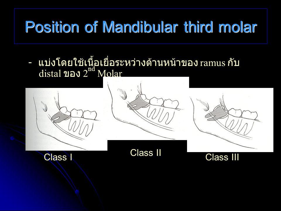 Position of Mandibular third molar - แบ่งโดยใช้เนื้อเยื่อระหว่างด้านหน้าของ ramus กับ distal ของ 2 nd Molar Class IClass III Class II