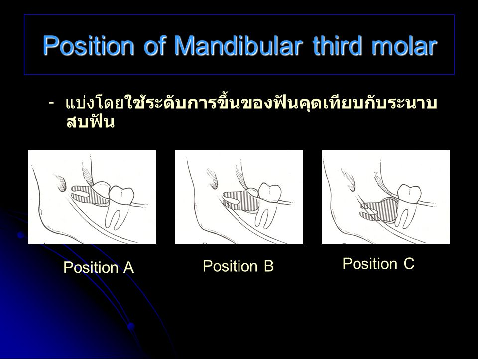 Position of Mandibular third molar - แบ่งโดยใช้ระดับการขึ้นของฟันคุดเทียบกับระนาบ สบฟัน Position A Position B Position C