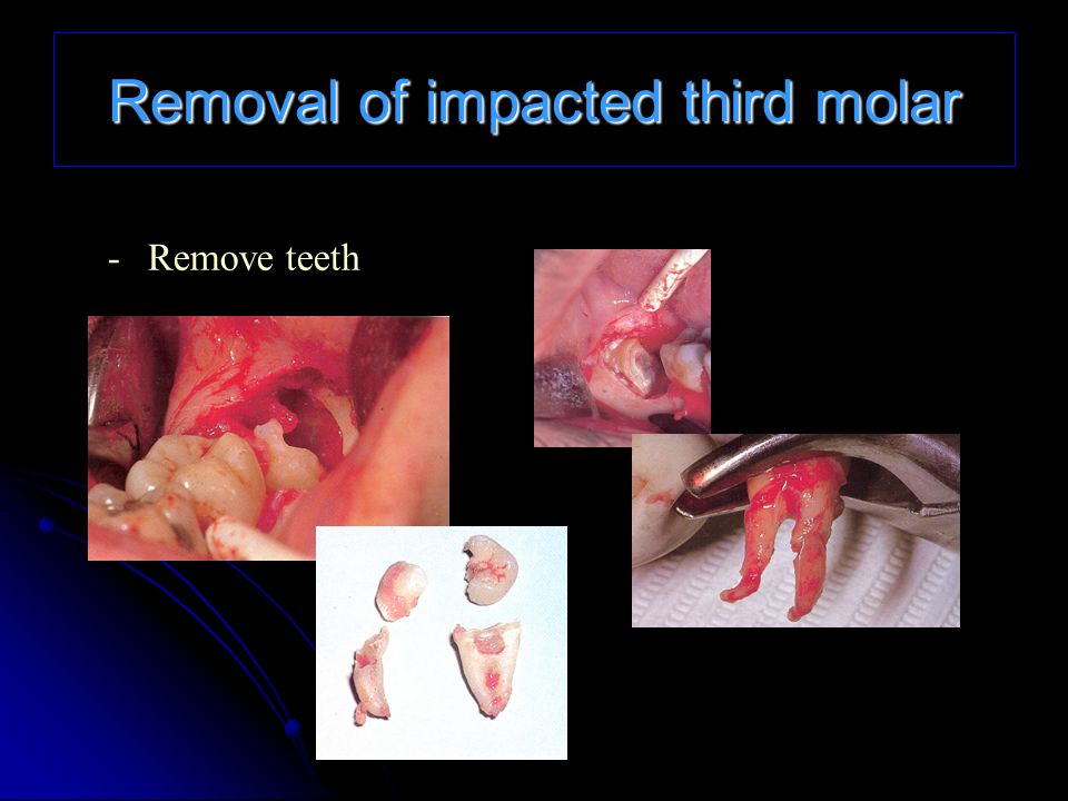 Removal of impacted third molar -Remove teeth