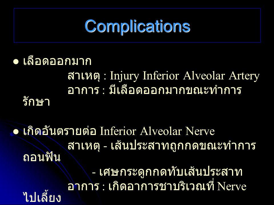 Complications เลือดออกมาก สาเหตุ : Injury Inferior Alveolar Artery อาการ : มีเลือดออกมากขณะทำการ รักษา เกิดอันตรายต่อ Inferior Alveolar Nerve สาเหตุ -