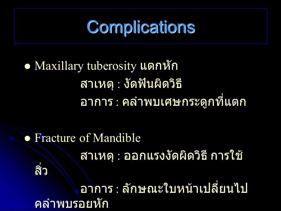 Complications Maxillary tuberosity แตกหัก สาเหตุ : งัดฟันผิดวิธี อาการ : คลำพบเศษกระดูกที่แตก Fracture of Mandible สาเหตุ : ออกแรงงัดผิดวิธี การใช้ สิ