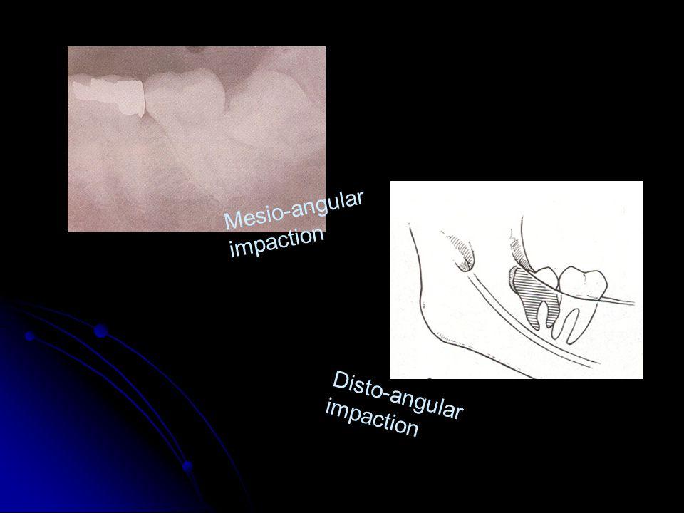 Mesio-angular impaction Disto-angular impaction