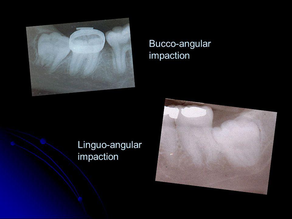 Bucco-angular impaction Linguo-angular impaction