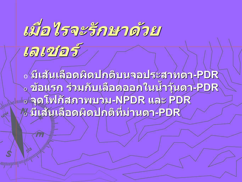 เมื่อไรจะรักษาด้วย เลเซอร์ มีเส้นเลือดผิดปกติบนจอประสาทตา -PDR  มีเส้นเลือดผิดปกติบนจอประสาทตา -PDR  ข้อแรก ร่วมกับเลือดออกในน้ำวุ้นตา -PDR  จุดโฟกัสภาพบวม -NPDR และ PDR  มีเส้นเลือดผิดปกติที่ม่านตา -PDR