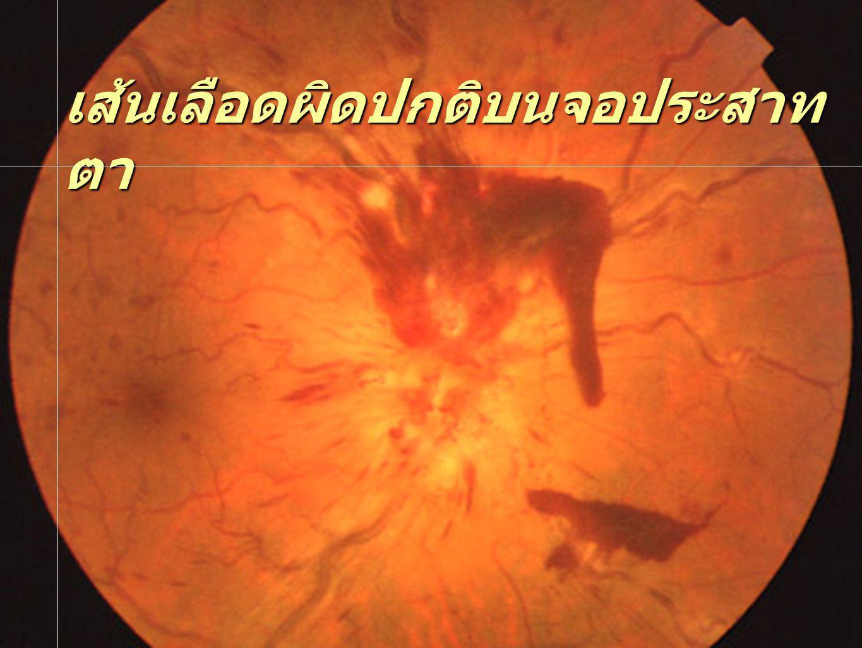 เส้นเลือดผิดปกติบนจอประสาท ตา