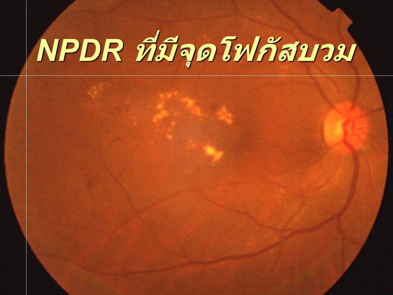 NPDR ที่มีจุดโฟกัสบวม