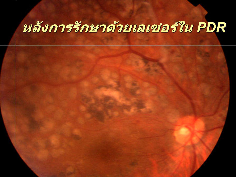 หลังการรักษาด้วยเลเซอร์ใน PDR